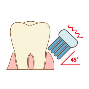 teeth-cleaning006