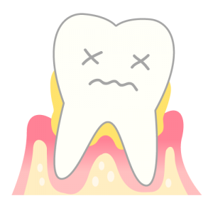 periodontosis_mechanism04